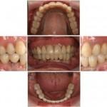 ほとんど全ての歯を失ったとき