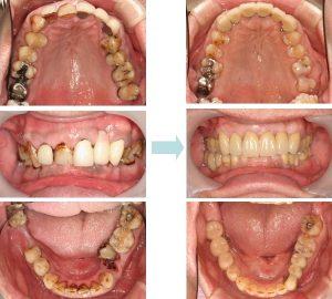 治療前と後の比較